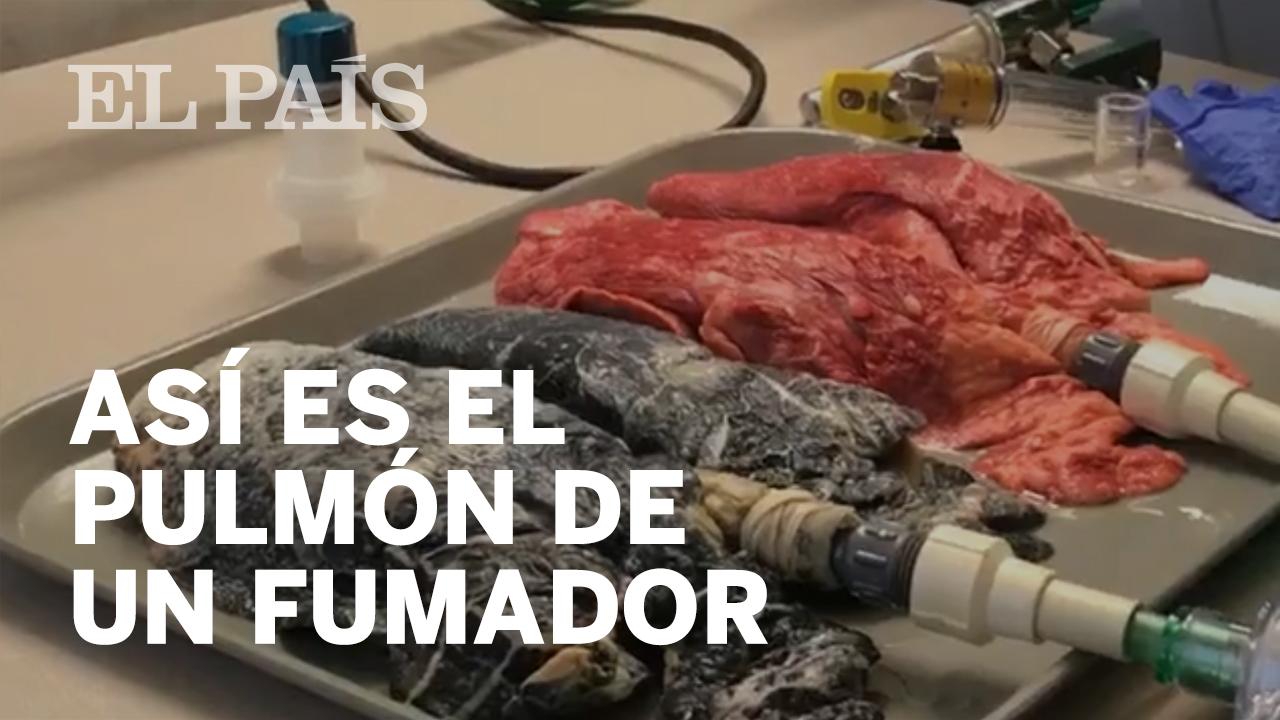 Vídeo: Así se hizo viral el pulmón de un fumador | Actualidad | EL PAÍS